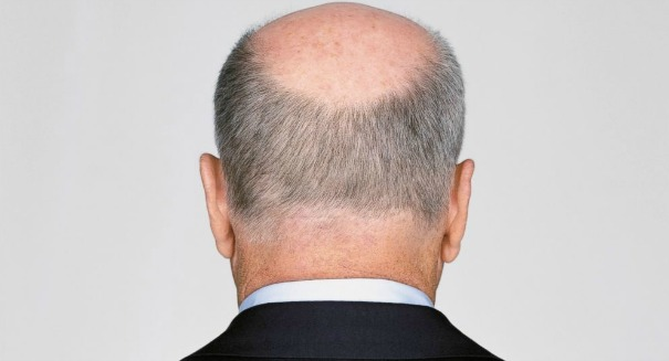 Cancer drug doubles as a cure for baldness, study finds