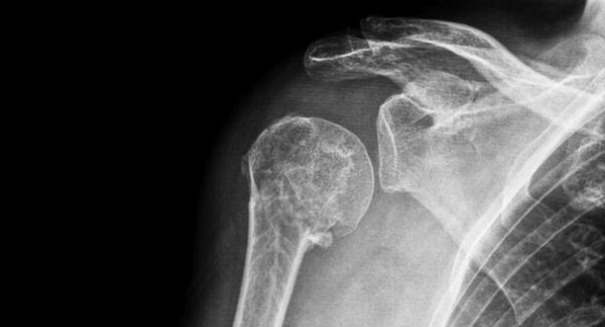 Dislocated AC joint? You should think twice about surgery