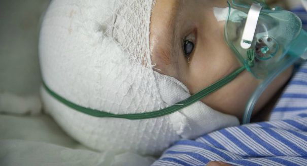 Chinese toddler saved by 3D printed titanium skull implant