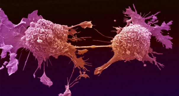 Breakthrough: New drug hailed 'game changer' for head and neck cancer