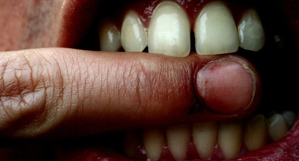 Type 2 diabetes could lead to loss of teeth, study says.